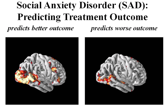 social_anxiety_brain_scans (1)