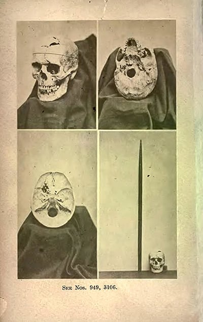 Frontispiece, showing multiple views of Gage's exhumed skull, an