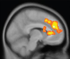 r3_c-users-tuppermj-desktop-dorsal_anterior_cingulate_cortex