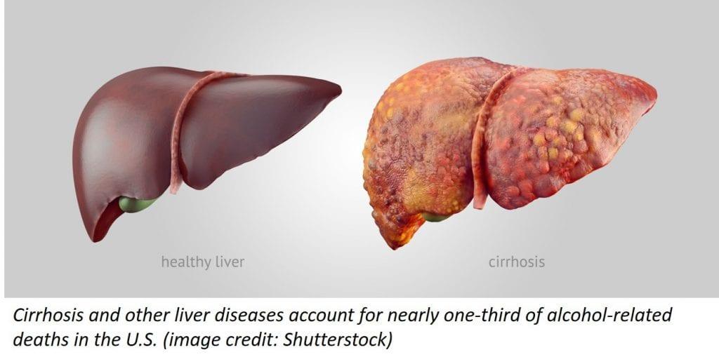 NIH:NIAAA | Shutterstock